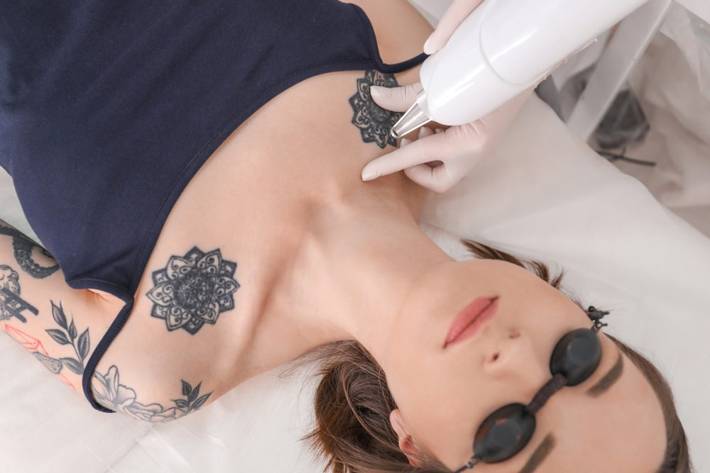 Professional laser treatment | Methods of Tattoo Removal | Life360 Tips